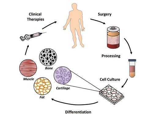 通过脂肪抽吸获取干细胞
