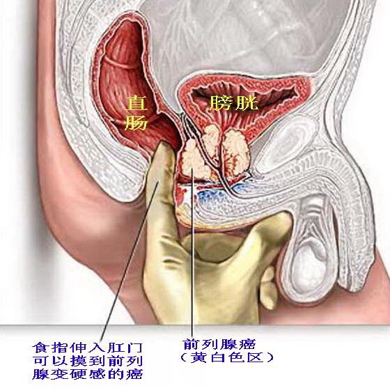 prostate orgasm video